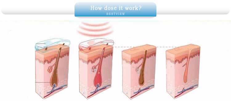 Working principle of Laser Hair Removal Machine