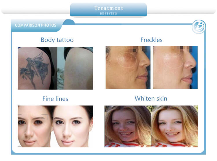 Treatment Before and After of Picosecond Laser