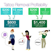 Tattoo Removal Laser Machine Buying Guide