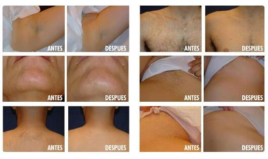 What Types Of Diode Laser Hair Removal Machine We Have?